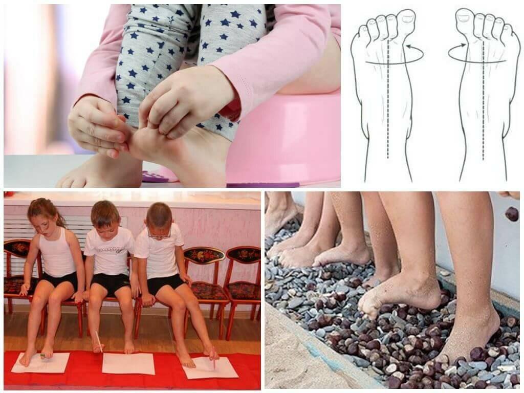 Техника массажа для детей при вальгусной деформации стопы в домашних условиях