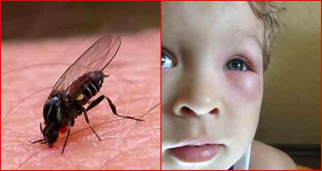 Aллергия на укусы комаров