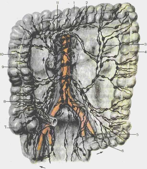 Лимфостаз (лимфедема)