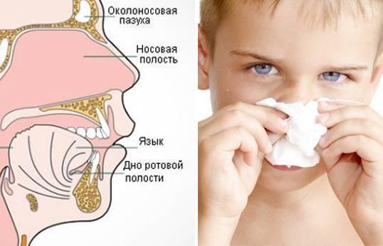 Сопли в горле у ребенка - как лечить, если жидкость стекает по задней стенке, вызывая кашель?