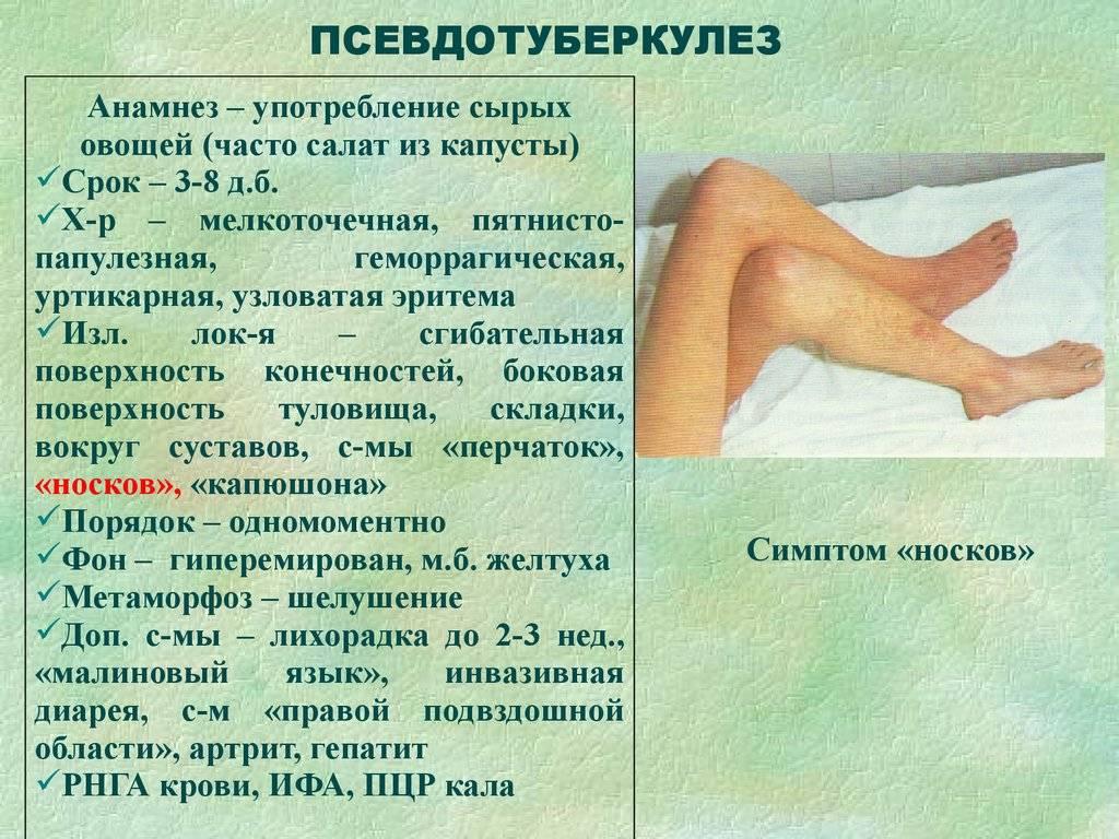 Псевдотуберкулез у детей - симптомы болезни, профилактика и лечение псевдотуберкулеза у детей, причины заболевания и его диагностика на eurolab