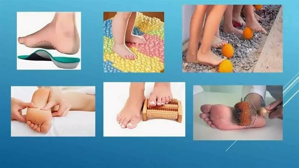 Плоскостопие - причины, лечение и профилактика у детей и взрослых.