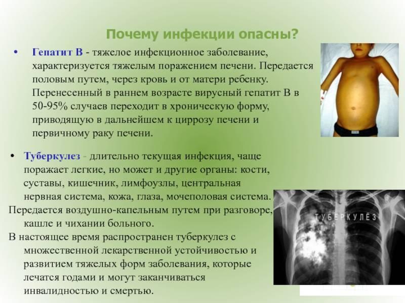 В чем особенность беременности при гепатитах а и е?