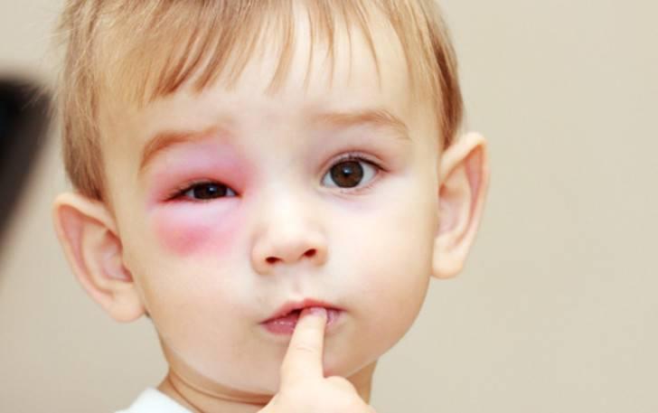 Отеки — диагностика причин и лечение вызывающих их заболеваний