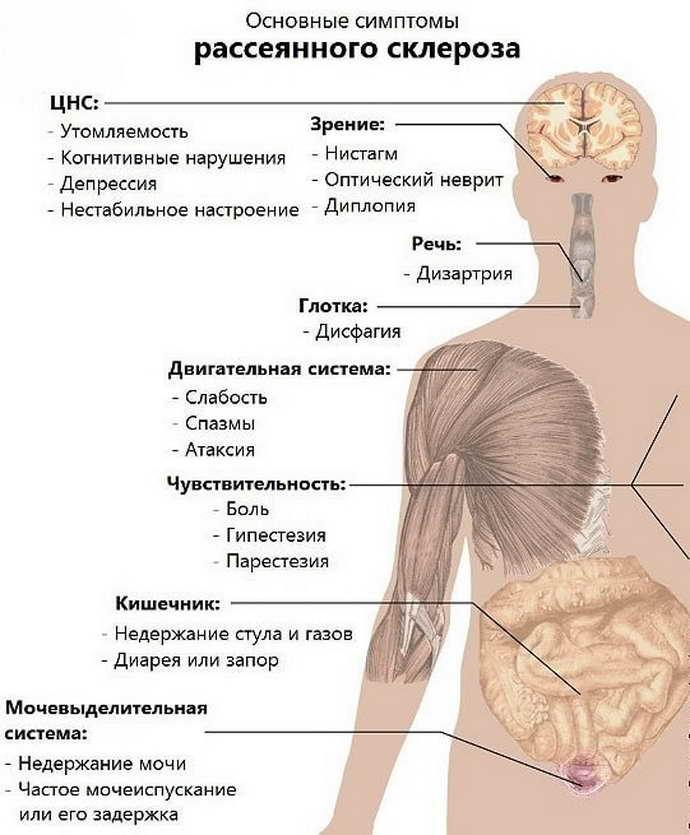 Нейробластома: симптомы, признаки