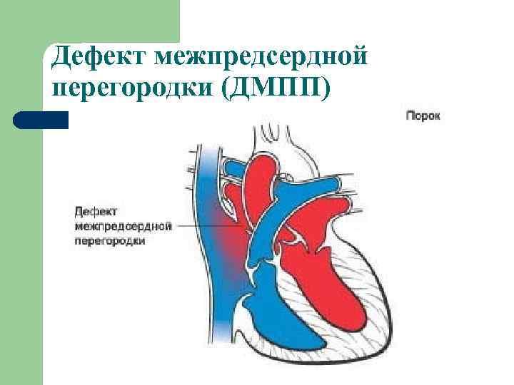 Дефект межжелудочковой перегородки (дмжп) – диагностика и лечение