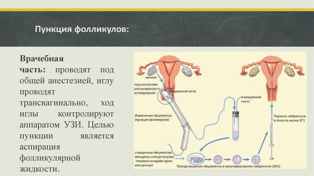 Стимуляция яичников в протоколах эко