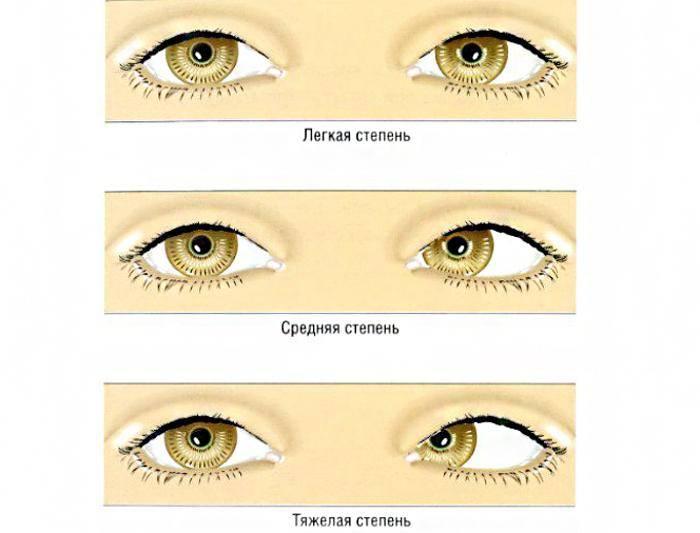 Как состояние здоровья беременной женщины влияет на зрение ребенка? «ochkov.net»