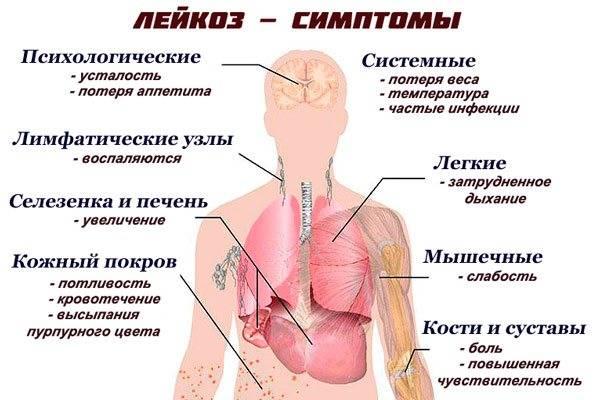 Лейкемия - docrates