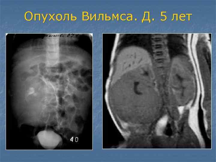 Опухоль вилмса (нефробластома) - краткая информация