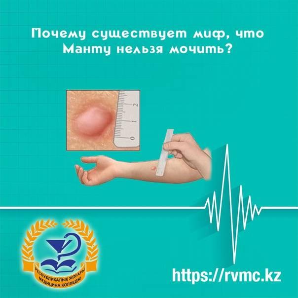 Прививка манту: можно ли мочить, почему нельзя и сколько дней