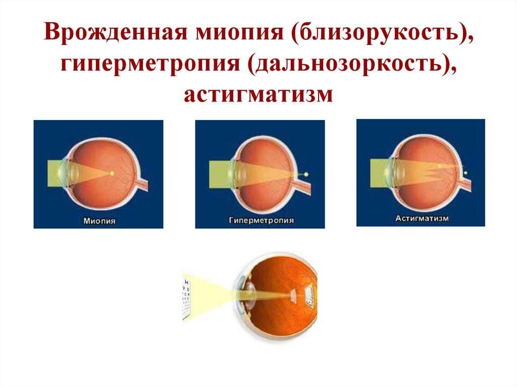 Врожденный астигматизм хрусталика - энциклопедия ochkov.net