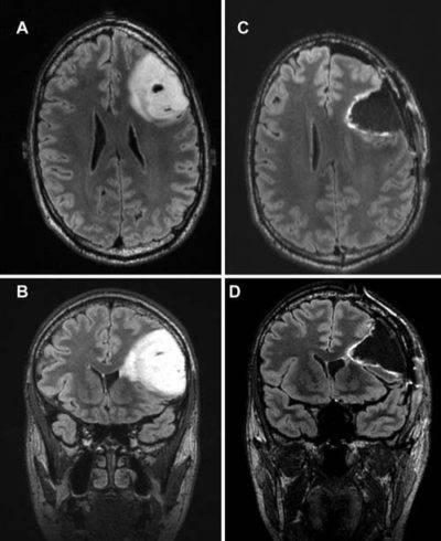 Опухоль височной доли головного мозга: причины, симптомы, лечение — онлайн-диагностика