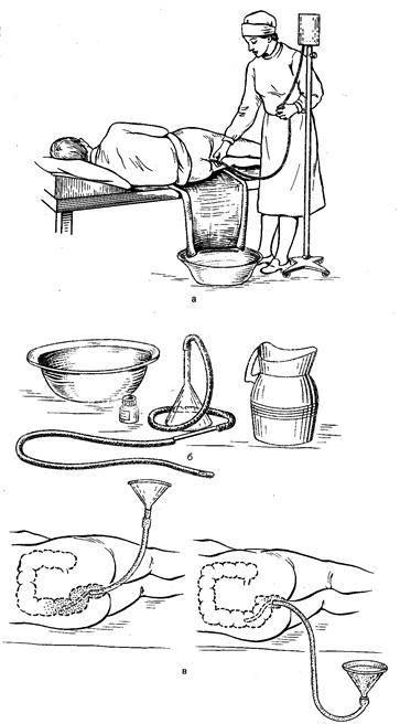 Клизма ребенку: как правильно сделать в домашних условиях | fok-zdorovie.ru