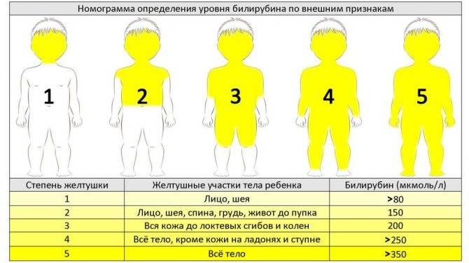 Норма билирубина у новорожденных в 2 месяца - таблица