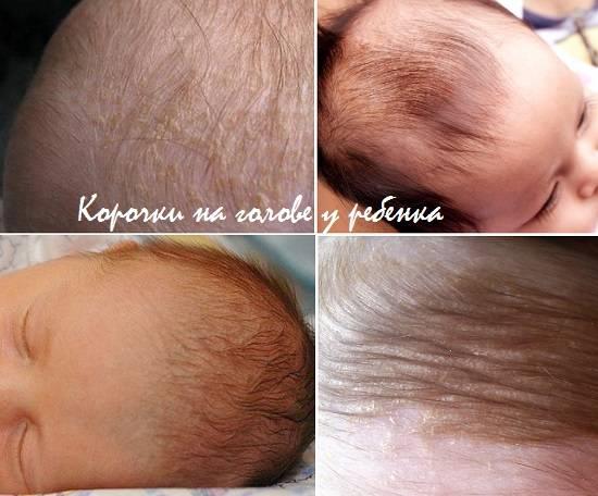 Волшебный андроген или отчего растут и выпадают волосы