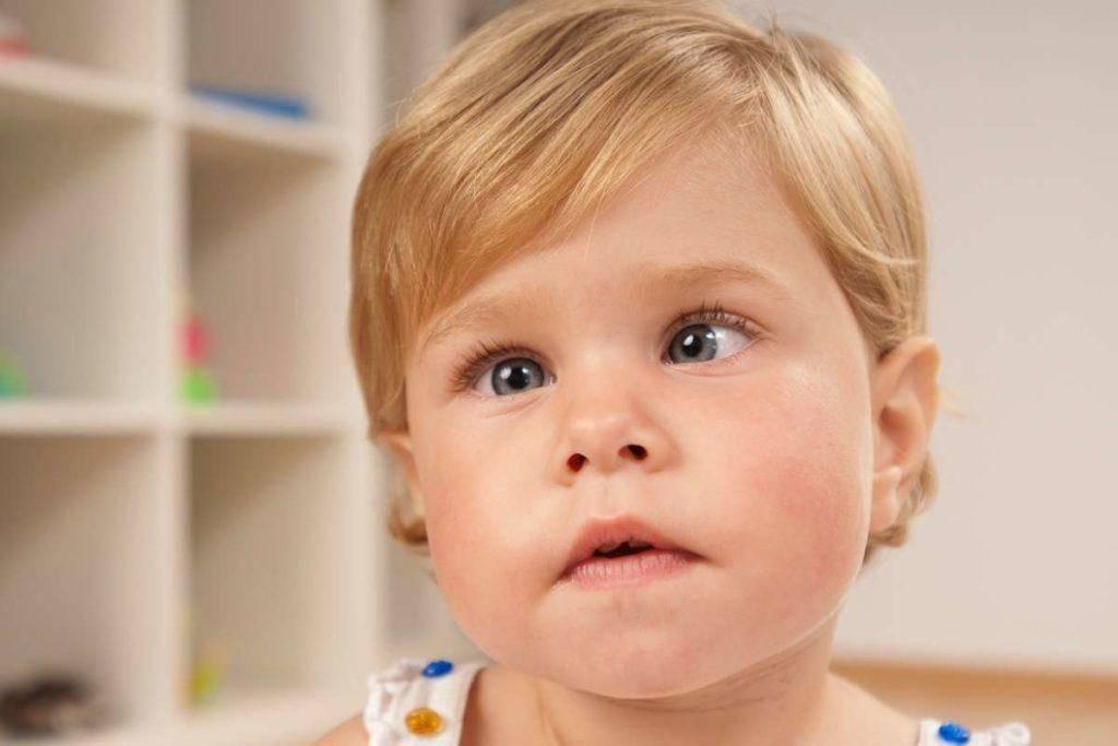 Как определить косоглазие у ребёнка? Советы детского офтальмолога