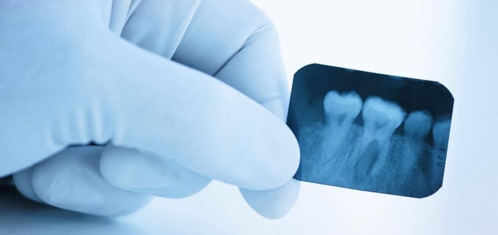 Опасность рентгена при беременности - рентген легких, зуба, носа на раннем и позднем сроке беременности