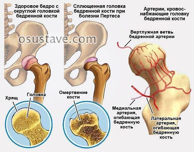 Неврит тазобедренного нерва: причины и лечение бедренного неврита