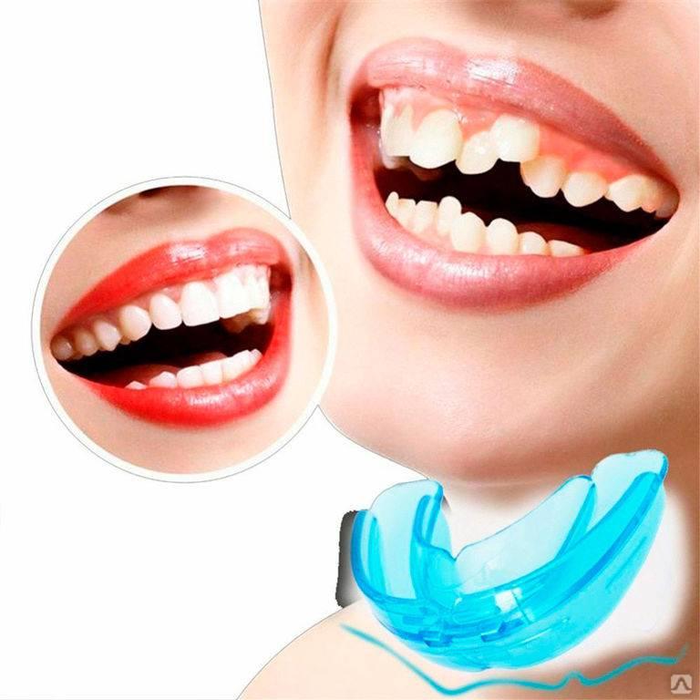 Зубные пластины для детей