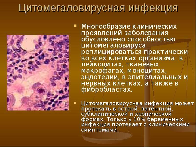 Антитела к вирусу герпеса 6 типа igg, hhv 6 т. igg авидность