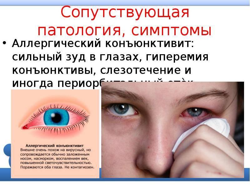 Заразен ли бактериальный конъюнктивит у детей? - энциклопедия ochkov.net