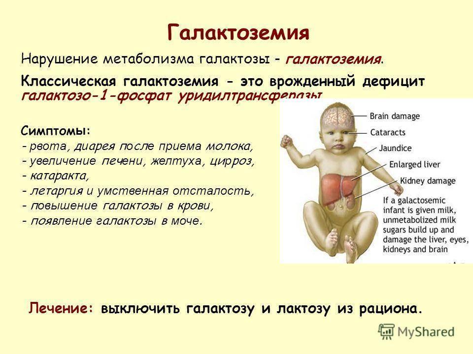Что нужно знать родителям о детской целиакии? Рассказывает детский гастроэнтеролог