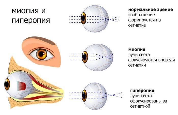 Возрастная дальнозоркость, лечение и коррекция гиперметропии