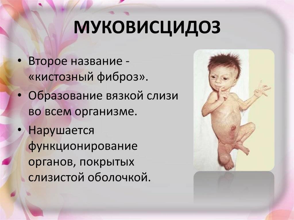 Муковисцидоз: симптомы и лечение, диагностика - сибирский медицинский портал