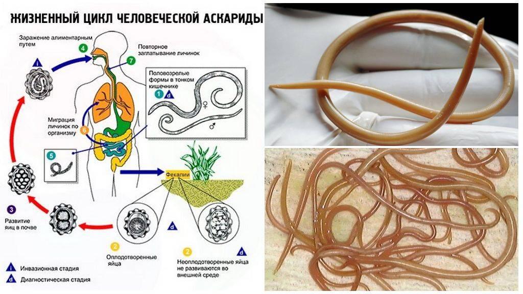Аскаридоз. симптомы, диагностика, лечение