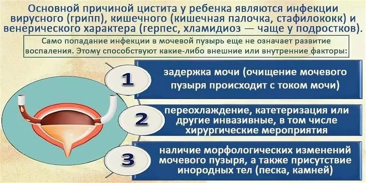 Цистит у женщин: лечение, симптомы и причины. рекомендации врача-гинеколога.