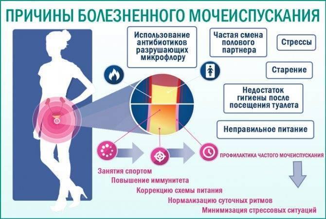 Боль после мочеиспускания   компетентно о здоровье на ilive