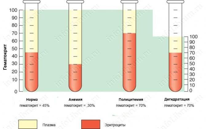 Кровоток в средней мозговой артерии при тяжелых формах гемолитической болезни плода и многократных внутриутробных переливаниях крови