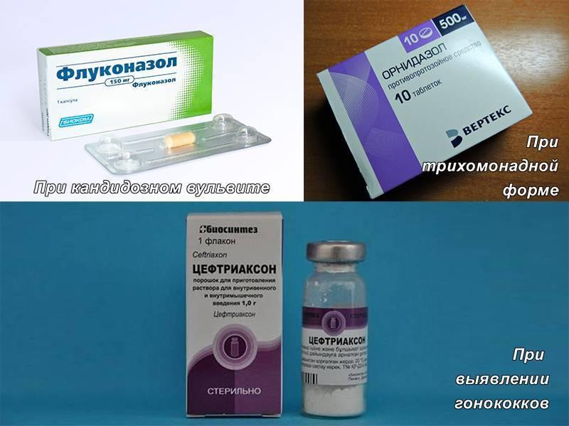 Вульвовагинит - виды, диагностика и лечение вульвовагинита