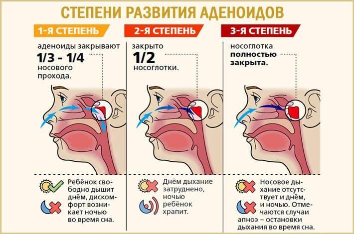 Аденоиды у детей и взрослых. лечение аденоидов 1, 2 и 3 степеней без удаления. эндоскопическая диагностика аденоидов без рентгена - медицинский центр «эхинацея»