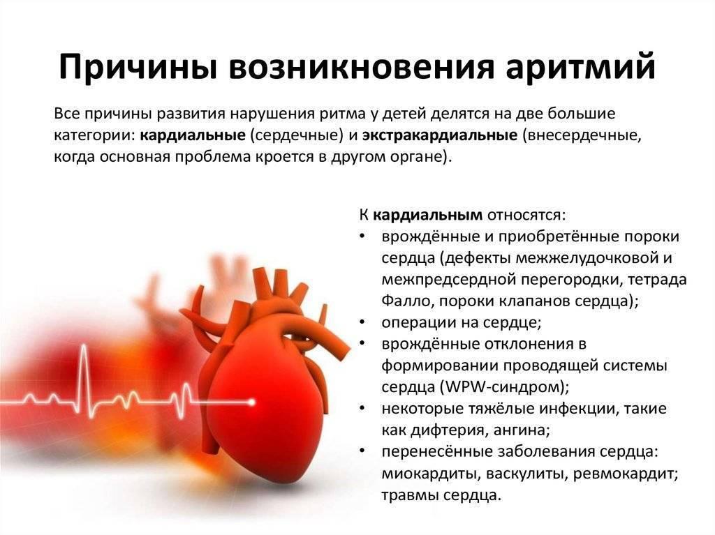 Аритмии у детей: почему они возникают и надо ли их лечить? Рассказывает детский врач-кардиолог
