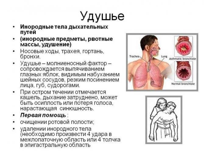 Одышка – затруднение дыхания: диагностика причин и эффективное лечение