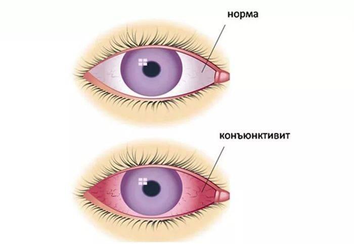 Покраснение глаз у детей: причины и лечение