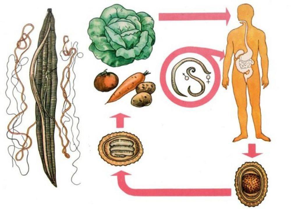Аскаридоз - инфицирование, современная диагностика, лечение и профилактика болезни
