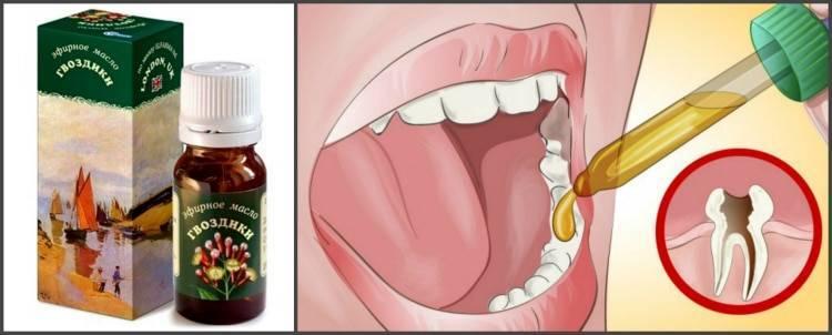 Нужно ли обезболивать молочные зубы во время лечения