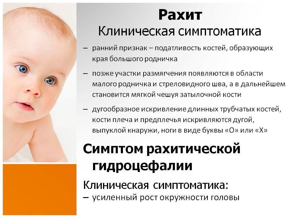 Рахит у детей: симптомы, диагностика, лечение — онлайн-диагностика