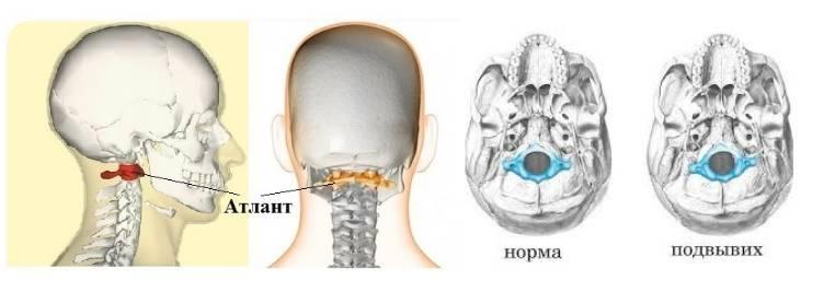 Почему возникают подвывих и вывих шейного позвонка, каковы их симптомы и лечение? » спортивный мурманск