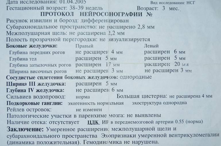 Нейросонография: цена от 1 900 руб в москве в сети клиник медок
