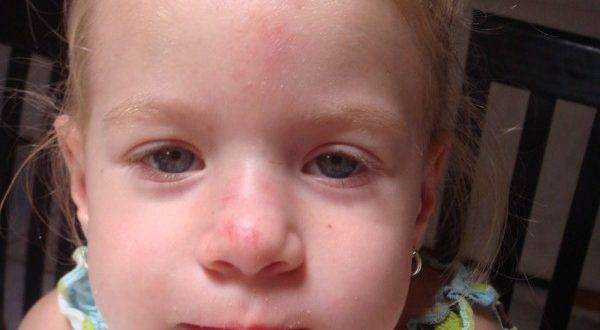 Синяя переносица у ребенка