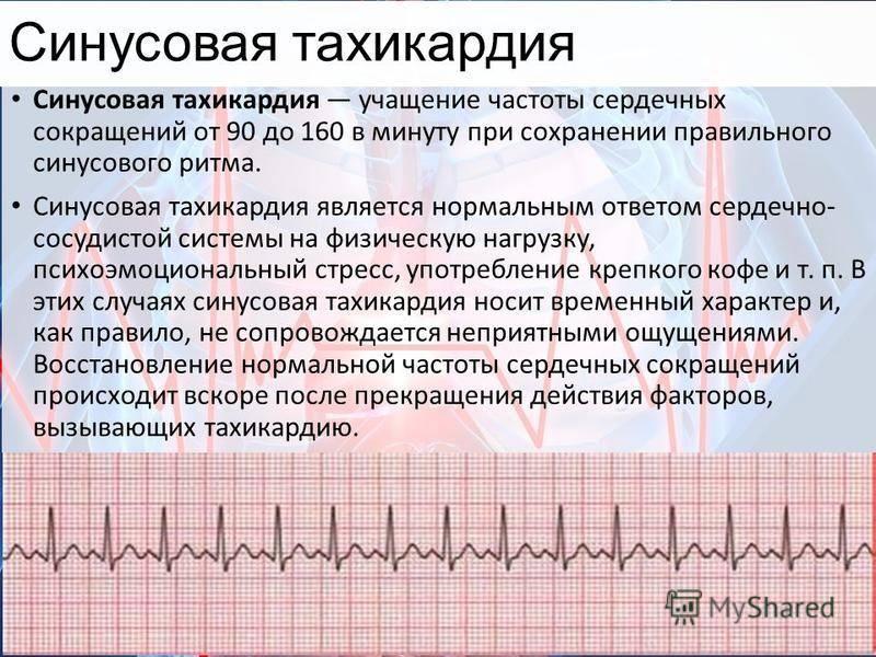 Тахикардия сердца - лечение в ростове-на-дону