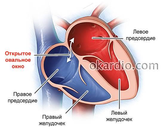 Открытое овальное окно - лечение эндоваскулярными методами в отделении института амосова.