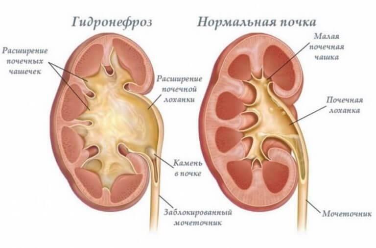 Гидронефроз почек. симптомы и лечение гидронефроза