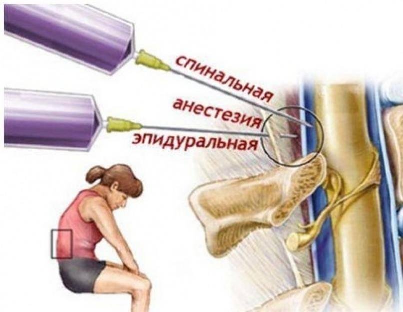 Блокада от боли в спине