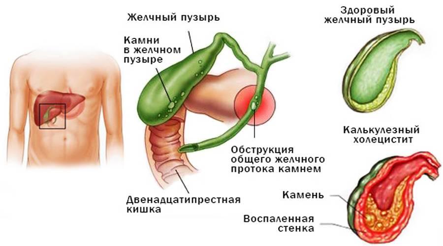 Лямблиоз: чем опасен, симптомы лямблиоза. как заражаются лямблиями. диагностика и лечение лямблиоза