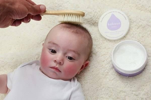 ᐈ выпадение волос у детей: причины и методы лечения